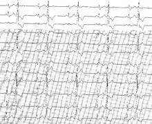 Bigéminisme ventriculaire
