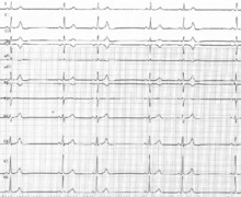 Blocked premature atrial complexes