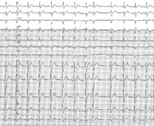 Premature atrial complex hidden in the T wave
