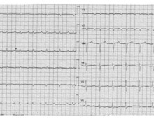 Cardiac amyloidosis