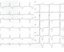 Apical hypertrophic cardiomyopathy