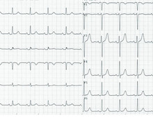 Hypertrophic cardiomyopathy and evolution of tracings