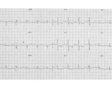 Pulmonary arterial hypertension, evolution of tracings