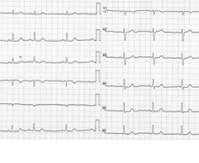 Severe pulmonary embolism and evolution of tracings