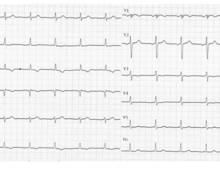 Pulmonary embolism and S1Q3 pattern