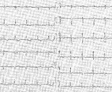 Péricardite chronique constrictive