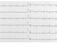 Pericardial effusion, pericarditis, electrical alternans