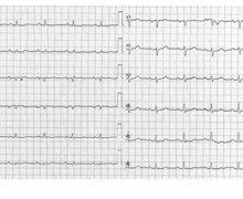 Pericardial effusion, pericarditis, electrical alternans