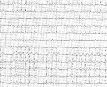 Acute pericarditis and atrial arrhythmia