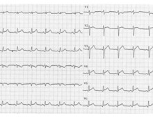 Electrocardiographic evolution during acute pericarditis