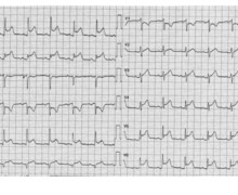 Chest pain, ST-segment elevation and acute pericarditis
