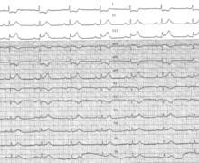 Prinzmetal's angina and atrioventricular conduction disorders