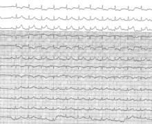Angor de Prinzmetal et  troubles de conduction auriculo-ventriculaire