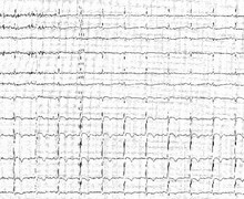 Prinzmetal's angina