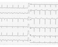 Inferior infarction and Dressler's syndrome