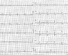 NSTEMI and unstable angina