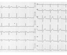 Subendocardial ischemia and acute phase of infarction