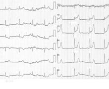 Ischémie sous-endocardique et phase aigüe d'un infarctus
