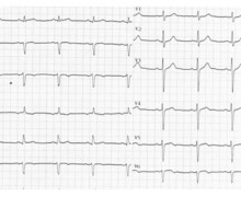 Subendocardial ischemia and LAD stenosis