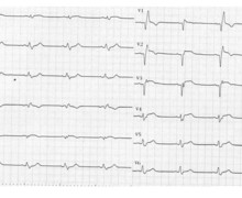 Anterior infarction and right bundle branch block appearance