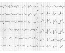 Anterior infarction in a patient with a prior right bundle branch block