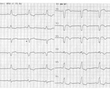 Acute anterior myocardial infarction and appearance of a left bundle branch block
