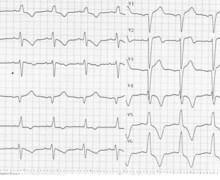 Anterior infarction in a patient with a pre-existing left bundle branch block