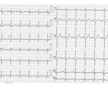 Posterior myocardial infraction related scar