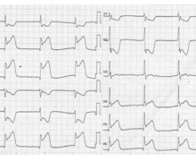 Extensive inferior infarction with right ventricular and posterior wall extension
