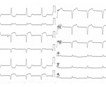 Inferior infarction with right ventricular extension