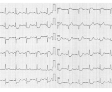 Severe stenosis of the left main coronary artery