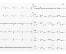 Anterior infarction