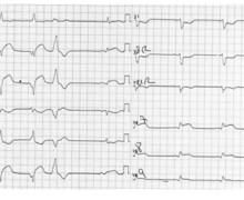 Inferior infarction, reperfusion and AIVR