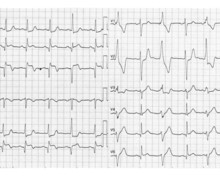 Inferior infarction, evolution after fibrinolysis