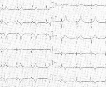 Inferior infarction, evolution after fibrinolysis