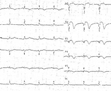 Evolution of tracings during an anterior infarction