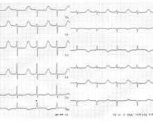 Prolonged QT-interval