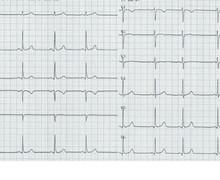 QRS amplitude
