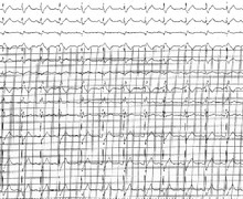 General information on intraventricular conduction disorders