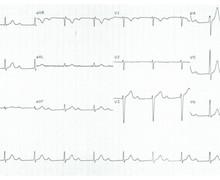 Long PR-interval