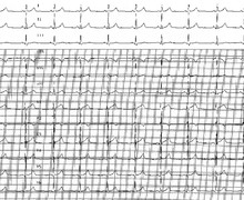 Misplacement of precordial leads