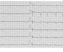 Amylose cardiaque 2