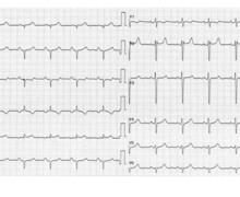 Cœur pulmonaire chronique