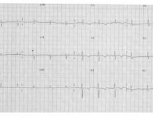 Hypertension artérielle pulmonaire, évolution des tracés