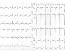 Embolie pulmonaire sévère et évolution des tracés