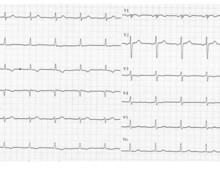 Embolie pulmonaire et aspect S1Q3