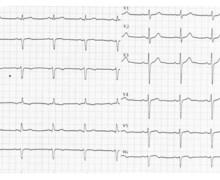 Ischémie sous-endocardique et sténose de l'IVA