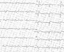 Infarctus antérieur et néo-bloc de branche droit