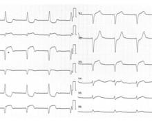 Infarctus inférieur avec extension au ventricule droit