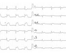 Infarctus inférieur sur thrombose de la coronaire droite